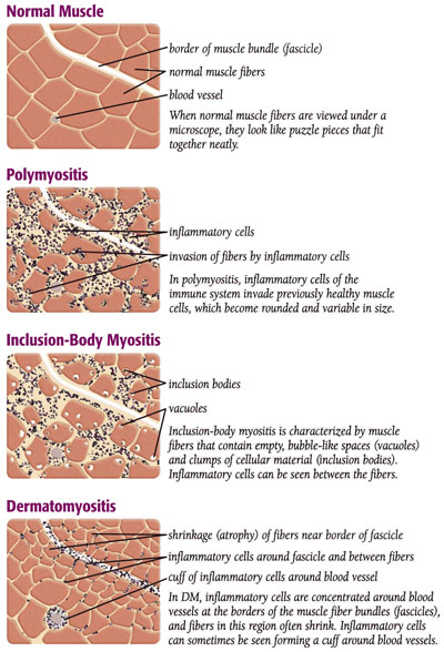 Myositis | Causes, Symptoms and Treatment of IIM