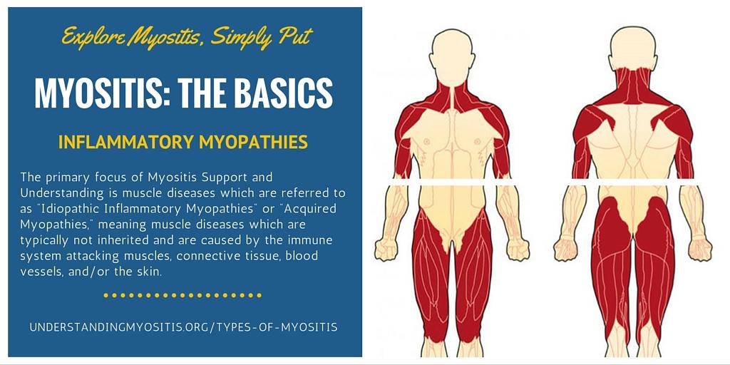 What Is Myositis Myositis Support And Understanding