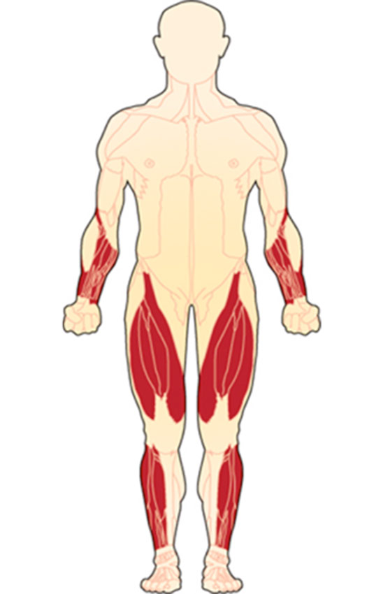Muscles typically affected by IBM