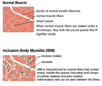 IBM vs. Normal muscle biopsy
