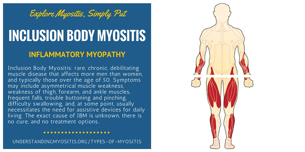 Inclusion body myositis
