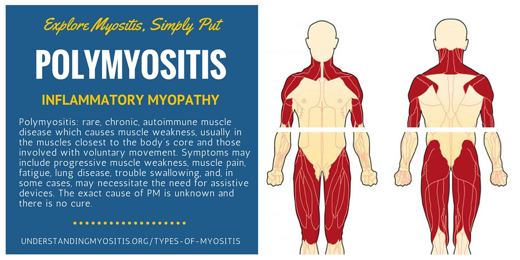 Polymyositis, Learn more from Myositis Support and Understanding