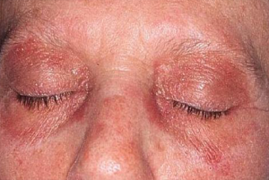Classic Heliotrope rash shown over eyelids