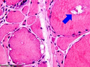 "sIBM Muscle Biopsy pointing out the inclusion ""bodies"""