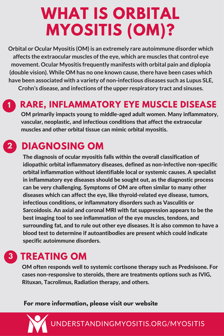 Learn more about Orbital Myositis