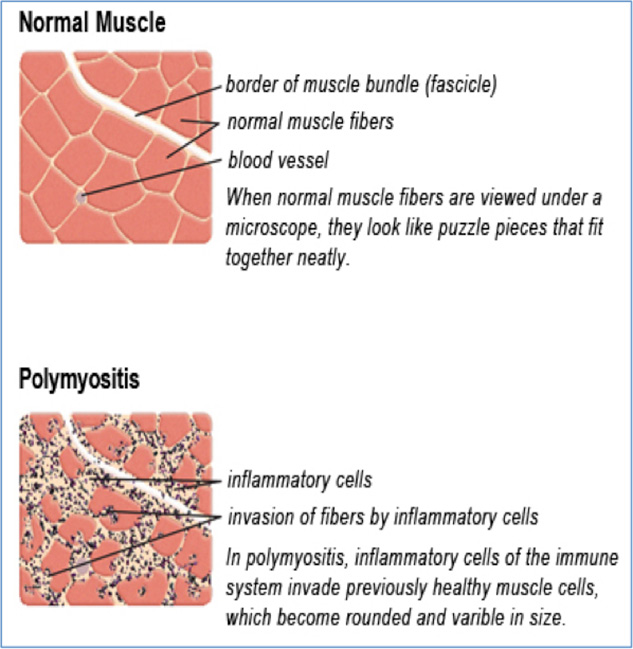 Polymyositis vs. Normal muscle biopsy