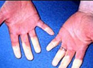 Raynaud Phenomenon and Myositis