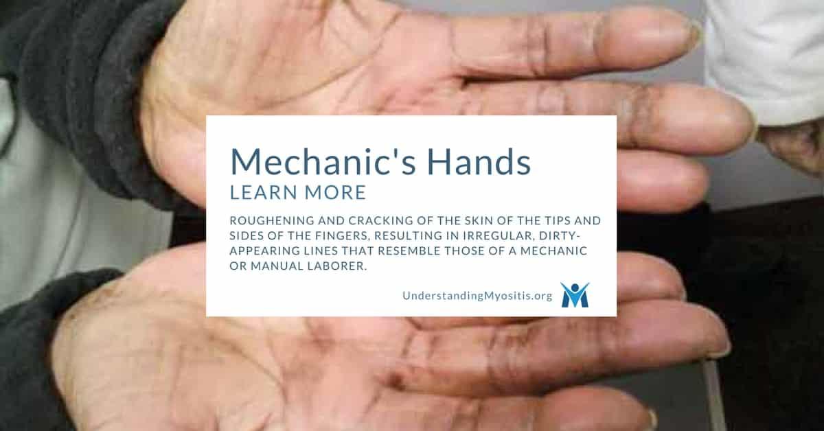Mechanic's Hands   Myositis Support and Understanding