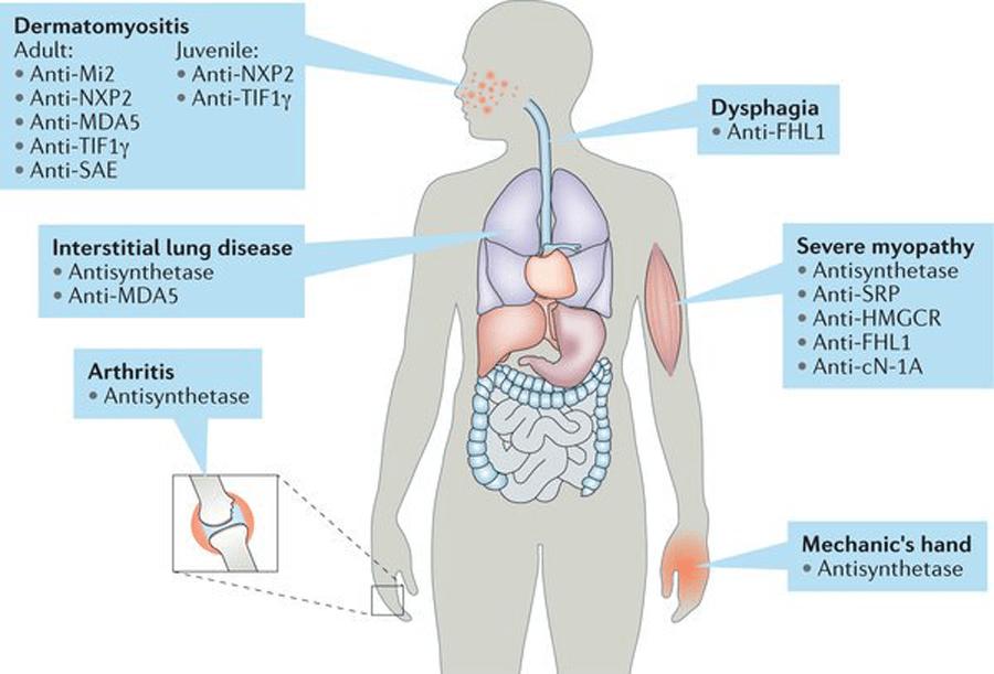 Myositis-Specific and Myositis-Associated Antibodies