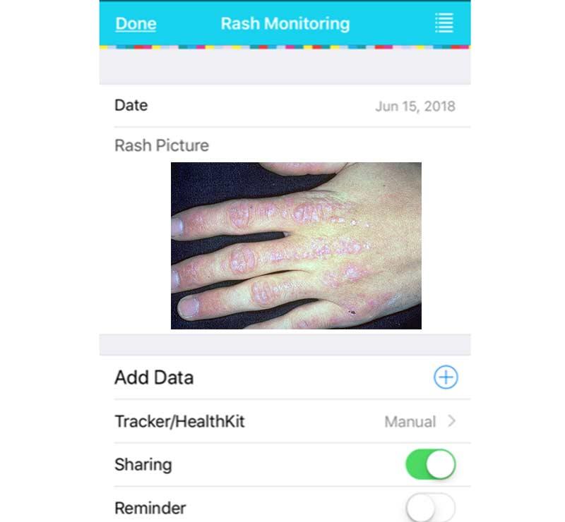 Myositis App, Rash Monitoring