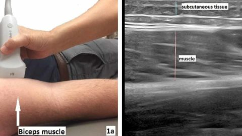 Ultrasound elastography in neuromuscular and movement disorders