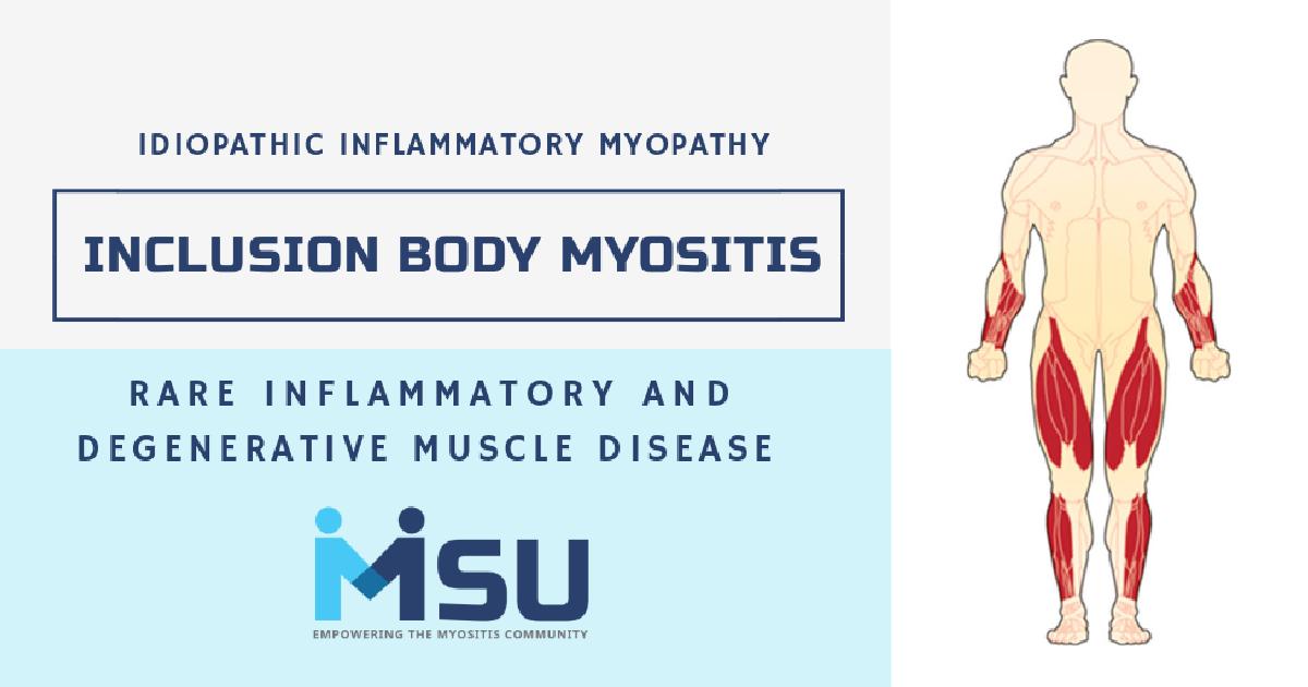 Sporadic Inclusion Body Myositis Symptoms